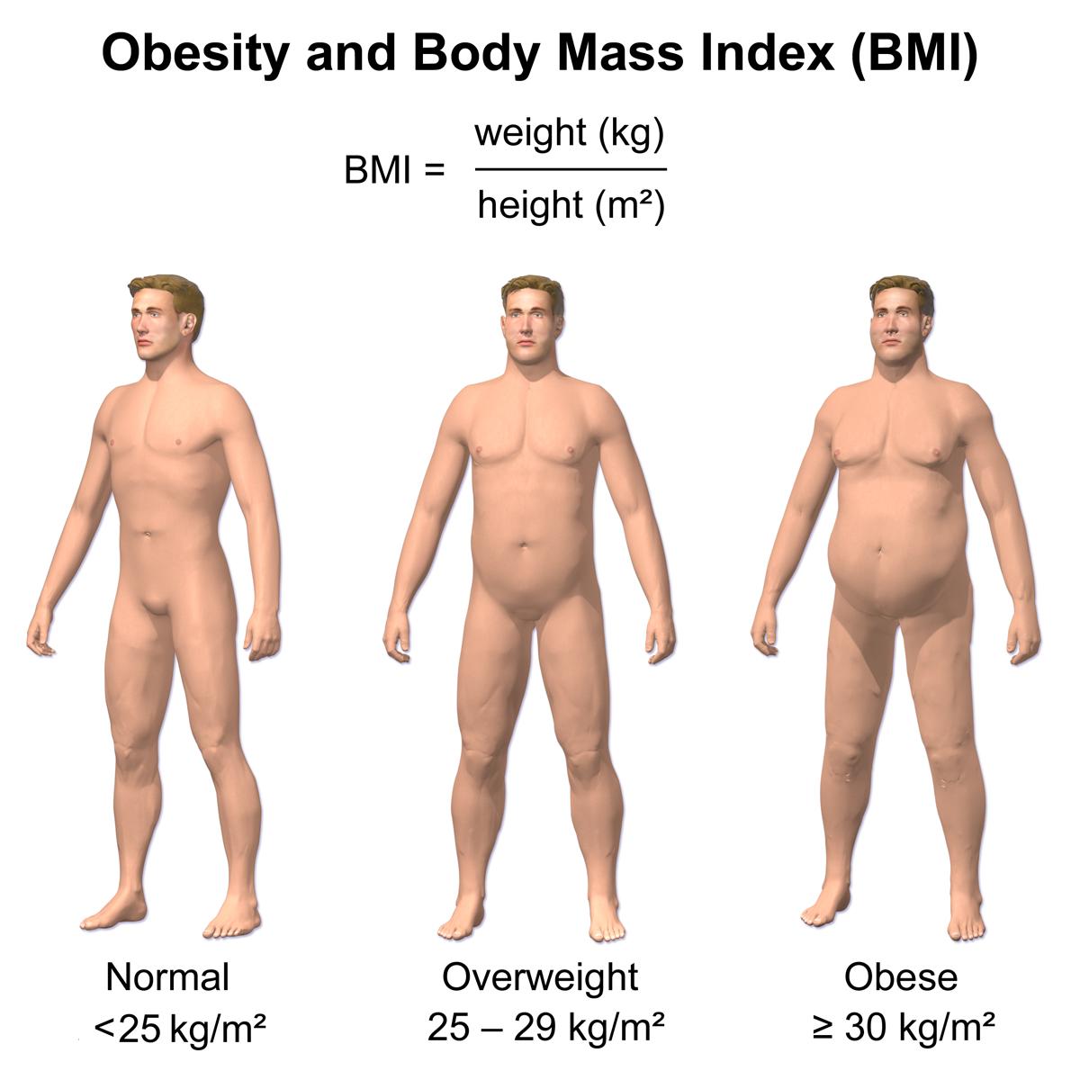 overgewicht bij kinderen en pubers